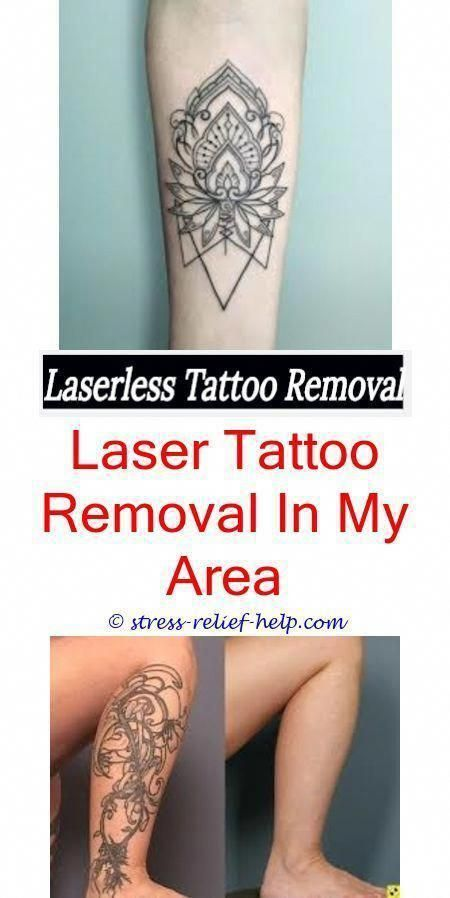 My Tattoo Removal Did Zac Efron Get His Tattoo Removed How Do You Remove A Perma Tattoo Removal E Diy Tattoo Tattoo Removal Cost Diy Tattoo Permanent