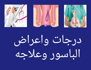 درجات واعراض الباسور وعلاجه Blog Blog Posts Post