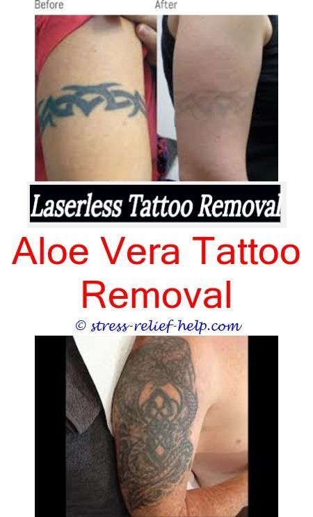 How to remove a tattoo with salt and ice.How does laser tattoo ...