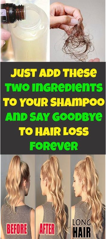 Do You Know What Causes Hair Loss The Experts Say That Hair Loss Is Related To Various Factors As Stress Hair Loss Excessive Hair Loss What Causes Hair Loss