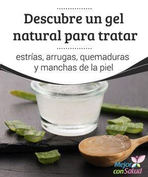 Crema Natural Para Quemaduras En La Piel