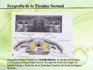 enfermedades de la glandula tiroides slideshare