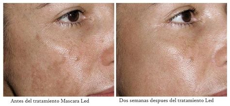 12 Ideas De Mascara Led Fototerapia Led Tejidos Canciones