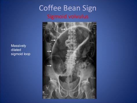 Coffee Bean Sign Coffee Beans Beans Coffee