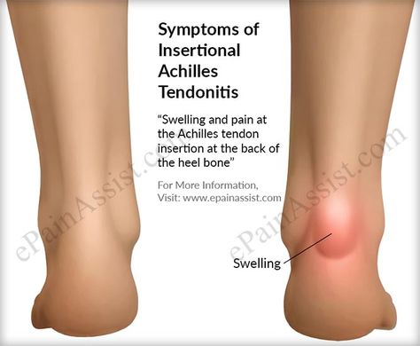 Signs And Symptoms Of Insertional Achilles Tendonitis Achilles