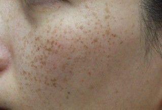 ガッテン を 方法 ためして シミ の 顔 消す