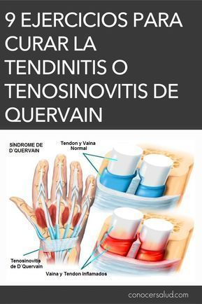 como curar el dolor de tendones de la mano
