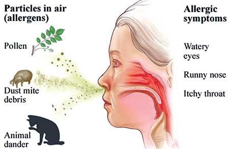 Allergic Rhinitis In Spring Health Nutrition Observerbd Com Allergic Rhinitis Runny Nose Itchy Eyes