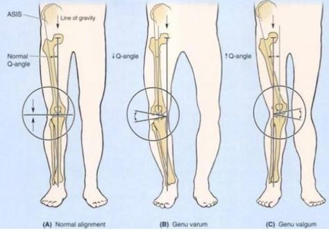 bow legs correction genu valgum or knock knee abnormal condition of the legs effective program for shaping your legs stuff of interest pinterest