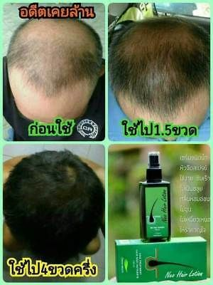 Details About New Neo Hair Lotion 120ml Hair Loss Treatments