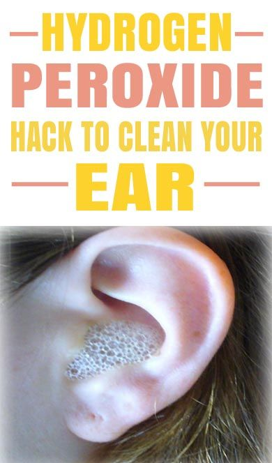 This Is The Best Hydrogen Peroxide Hack I Ve Ever Seen Lucky To Have Found This Cleaning Your Ears Cleaning Ears With Peroxide Hydrogen Peroxide Ear Cleaning