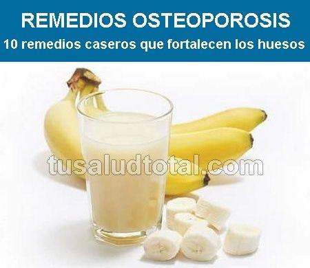 27+ Tratamiento natural para la osteoporosis avanzada ideas