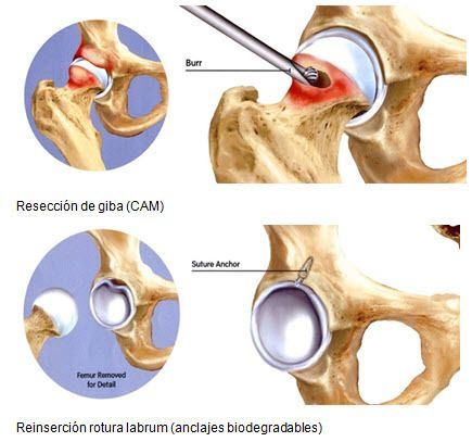 Cadera Hacia Una Fisioterapia Basada En La Evidencia Dolor De Ingle Dolor De Cadera Fisioterapia