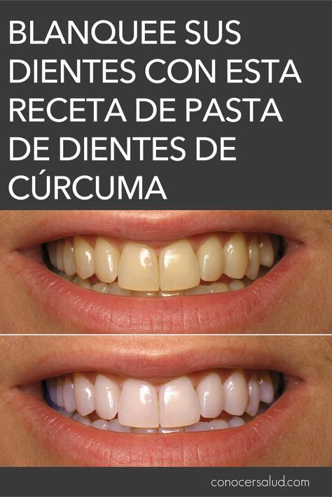 Blanquee Sus Dientes Naturalmente Con Esta Receta De Pasta De Dientes De Cúrcuma Salud Dental Tips Person