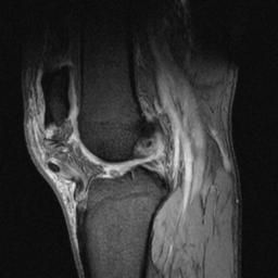 The 13 best mri knee anatomy images on pinterest anatomy anatomy the 13 best mri knee anatomy images on pinterest anatomy anatomy reference and action ccuart Choice Image