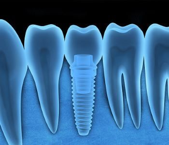 Patients Near Me In West Palm Beach Ask Why Get Zirconia Dental Implants Teeth Implants Tooth Implant Cost Dental Implant Treatment