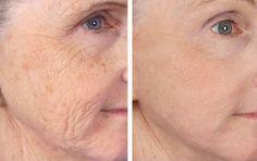 házi készítésű tippek az arc vékonyításáhozi