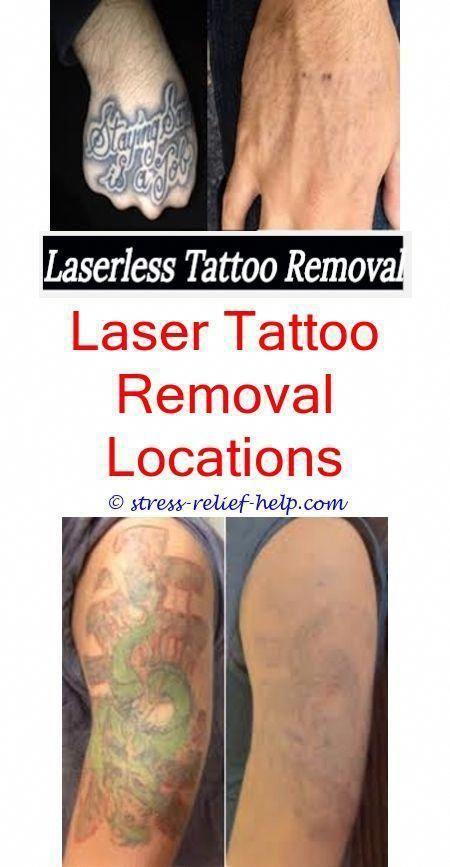 How Much Does It Cost To Remove A Tattoo Laser Tattoo Removal In