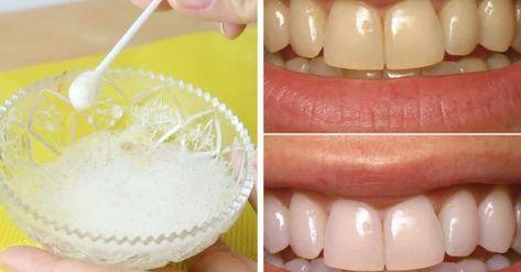 Como Clarear Os Dentes Em 1 Minuto Por Menos De 10 Reais