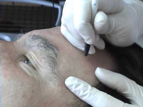 List of Pinterest sebaceous hyperplasia treatment faces