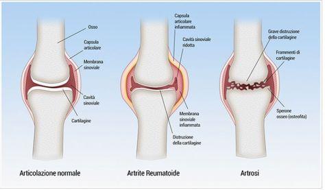 Le cure naturali contro l'artrosi