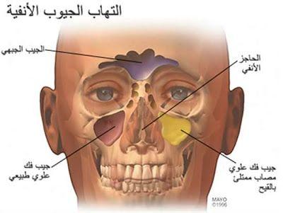 نصائح لمشاكل الجيوب الأنفية Chronic Sinusitis Sinus Surgery Sinusitis