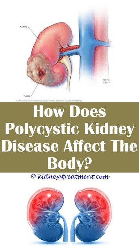 Kidney Health Signs Polycystic Kidney Disease Kidney Disease Kidney Disease Symptoms