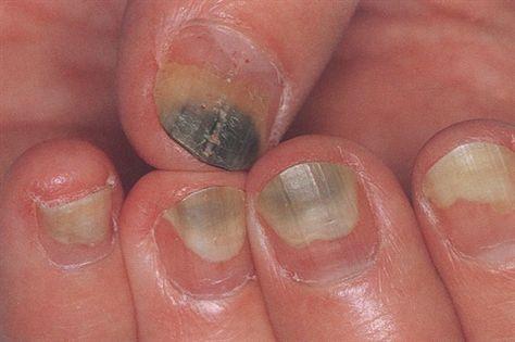 Pseudomonas Nail Fungus Toenail Fungus Remedies Toe Nails
