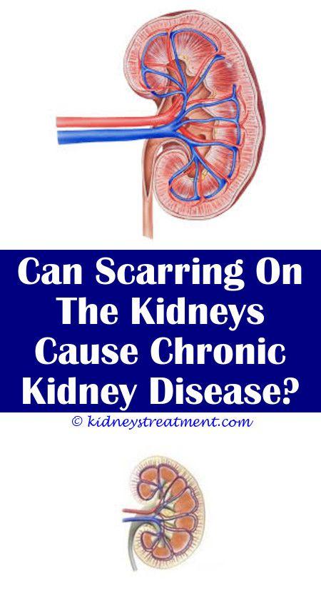 Account Suspended Kidney Failure Treatment Kidney Disease Recipes Chronic Kidney Disease