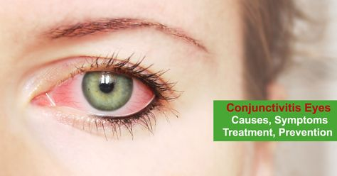 "If you woke up one morning and you find your eyes swollen, itching and irritated, then you are most likely suffering from ""Conjunctivitis"". Today, we will discuss the causes, symptoms and treatment for conjunctivitis, especially in Monsoon #eyecare #eyetips #healthcare #healthtips"