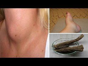 علاج الغدة الدرقية بعشبة القسط الهندي انشرها لعلها تصل شخصا في حاجة اليها Youtube Health Fish Tattoos Spritiual