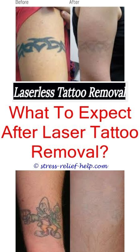 How Soon Can You Get Tattoo Removed Atlantic Tattoo Removal Home