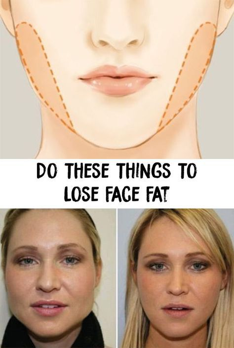 Pin On Lost Weight In Face