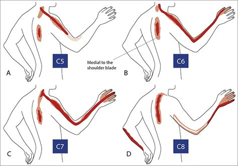 Anatomy & Physiotherapy - Regions of neuropathic pain in the neck and upper limb  (Image by: cmej.org.za)