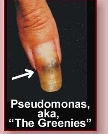 When We Think About Nail Infections Fungus Is Probably What First Comes To Mind However We Also Need To Be Nail Fungus Treatment Nail Problems Nail Infection