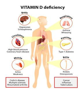 11+ Does vitamin d deficiency cause osteoporosis ideas