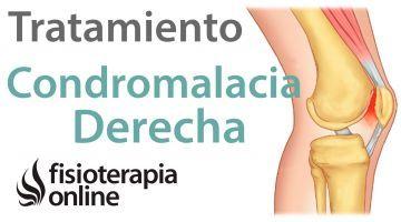 Tratamiento De La Condromalacia Rotuliana Derecha Condromalacia Rotuliana Condromalacia Anatomía De La Rodilla
