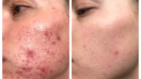 The Exact Skincare Products That Helped Clear This Woman S Cystic Acne In Just 3 Months With Images Skin Care Cystic Acne Cerave Moisturizer