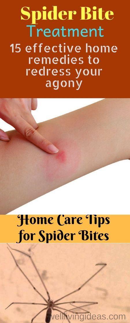 114ec59dc04b3eb47a5819a746e4b75d - How To Get Rid Of Insect Bites On Legs