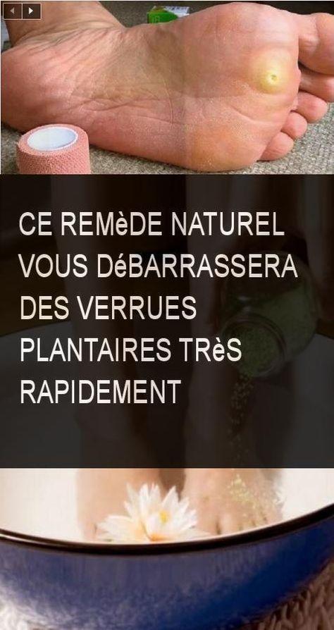 Ce Remede Naturel Vous Debarrassera Des Verrues Plantaires Tres Rapidement Remede Rapide Rapidement Debarrasser Plantaire Verrues Debarrassera Health