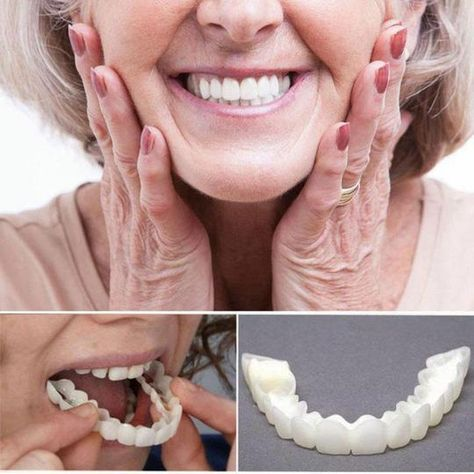 Get Yours>>69% OFF Today!Perfect Smile Snap-On Braces