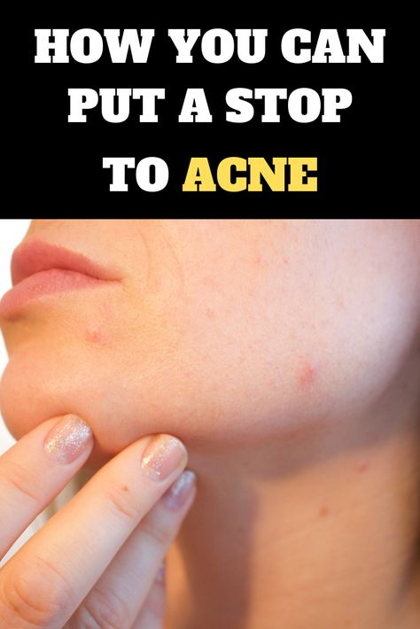 How you can put a stop to acne effectively with these simple to follow tips