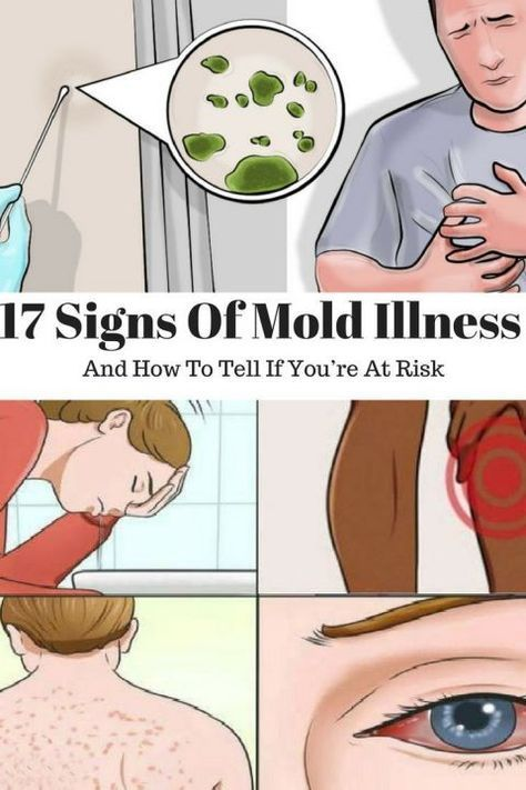 Mold is a very common problem and if it's present in your home, it may be the main reason for a lot of health issues. In order to recognize it, you need to know its main indicators. When diagnosed with mold illness, he/she needs to treat the problem and avoid more serious complications. Unfortunately, there is no conventional treatment for mold. The symptoms are very similar to signs that indicate other conditions and diseases and therefore, mold is not easy for diagnosis. Let's take a look at
