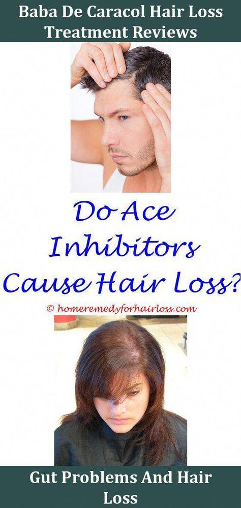 Hair Loss Hair Loss Due To Calp Burns From Perm Hair Loss Treatment
