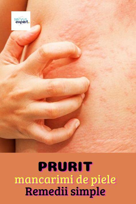 remedii populare de la mâncărime cu varicoză)