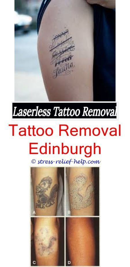 Tattoo Lightening How To Remove Eyeliner Tattoo Is Tattoo