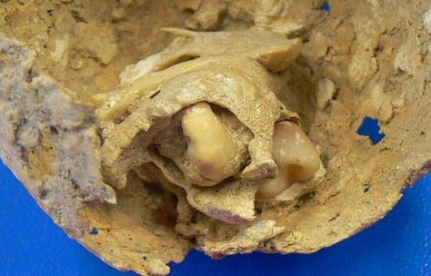 Archaeologists have found the 1,600-year-old skeleton of a Roman woman who had an ovarian teratoma, the first to be recorded in the ancient world. Such benign tumors originate from germ cells, which normally become human eggs and so can form other body parts. This particular tumor had calcified in her pelvis and contained bone and four deformed teeth.