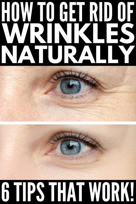 Get rid of fine lines and get smoother, younger-looking skin with these natural remedies for wrinkles that actually work! Aloe Vera For Face, Aloe Vera Face Mask, Under Eye Wrinkles, Face Wrinkles, Creme Anti Age, Fall Makeup Looks, Under Eye Bags, Les Rides, Natural Remedies