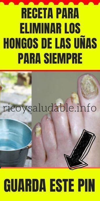 hongos en uñas tratamiento natural