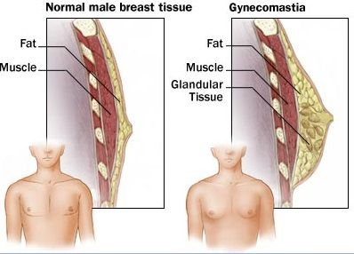 healthblog Homeopathy for Gynecomastia...